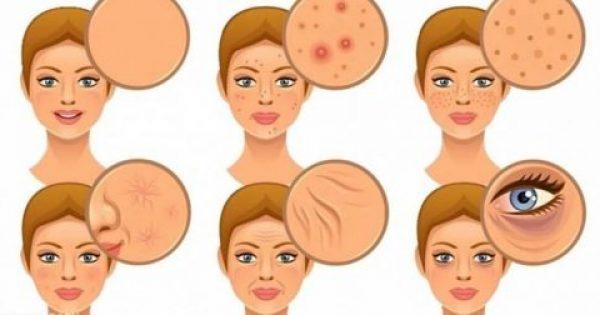 7 τρόφιμα που πρέπει να αποφύγετε γιατί είναι τοξικά για το δέρμα σας