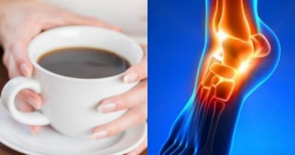 Oυρικό οξύ: Δείτε κάποιες καθημερινές τροφές/συνήθειες που ωφελούν ή βλάπτουν
