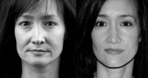 Απόλυτη Μεταμόρφωση: Κάνε Lifting Στο Πρόσωπό Σου Με Ειδικές Ασκήσεις Και Ένα Κουτάλι