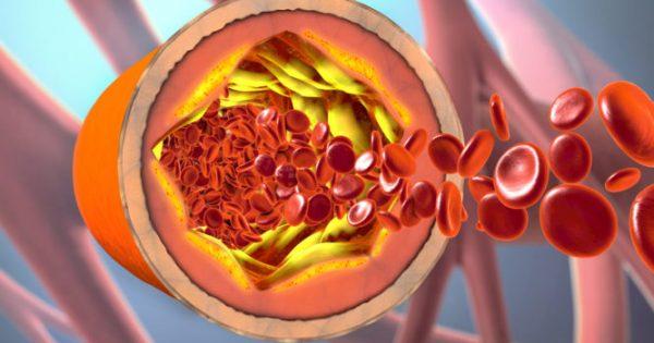 Τι είναι το μεταβολικό σύνδρομο: Πότε χτυπάει «καμπανάκι» σε περιφέρεια μέσης, σάκχαρο, πίεση, τριγλυκερίδια και χοληστερίνη!!!