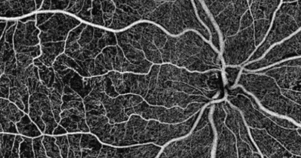 Αλτσχάιμερ: Ελπίδες για διάγνωση της νόσου μέσω οφθαλμολογικής εξέτασης