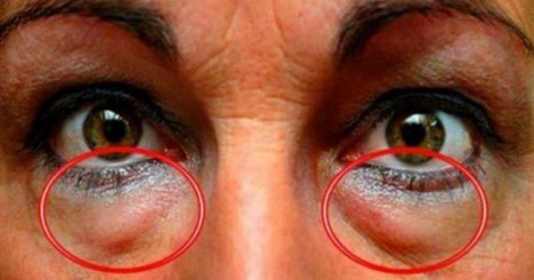 Το ελληνικό μπαχαρικό που προστατεύει τα μάτια από 90 παθήσεις