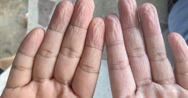 Γιατί ζαρώνουν τα δάχτυλα όταν μένουν πολλή ώρα στο νερό;