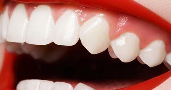 Τα προϊόντα λεύκανσης βλάπτουν τα δόντια… σε βάθος