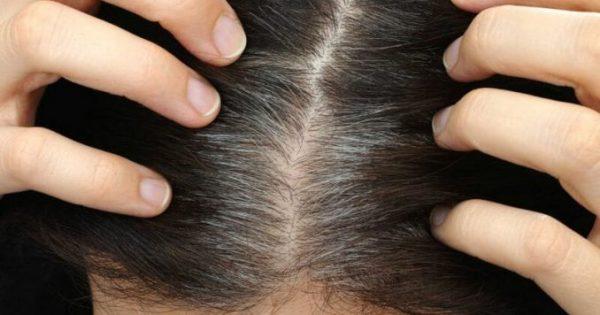 Πρόωρο γκριζάρισμα μαλλιών: 7 πιθανές αιτίες!!!