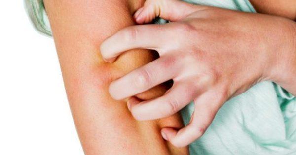 Τσίμπημα κουνουπιών- 6 tips για να απαλλαγείτε από την φαγούρα